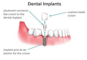 Dental Implants Adelaide